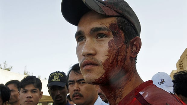 An ethnic Hazara Shia man is smeared in blood after bringing victims of a shooting to a local hospital in Quetta, Pakistan on Friday.
