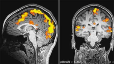 Based on active areas in the brain, shown in an fMRI scan, researchers could predict 55 to 65 per cent of the time which of three actions a person was going to do, several seconds before it happened.