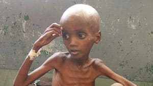 Aid agencies said Wednesday that more aid is needed to help starving children in East Africa and they encouraged Canadians to keep donating to famine relief funds.
