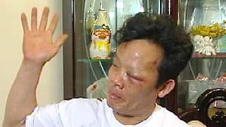 Vancouver man compensated for police beating