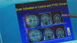 Neuroscientists hypothesize that some of the disruptions scientists see in the brain's default mode network in people with PTSD related to childhood trauma may be related to a damaged sense of self.