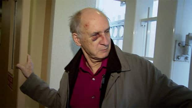 Neil Gillon said he and his wife believe they were hit by a hammer during the multiple assaults in Vancouver's West End Thursday night.