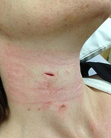 There are puncture wounds on both sides of Dawn Hepp's neck.