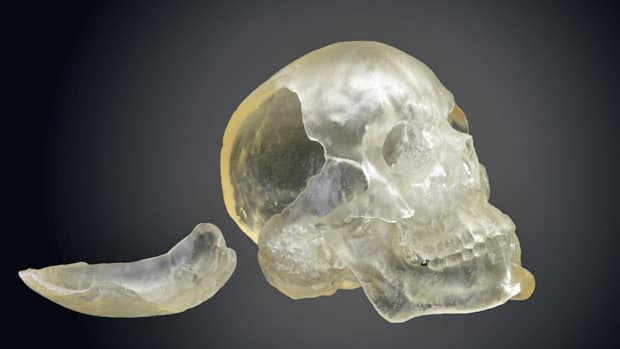 A resin replica skull of an American soldier injured by a blast in 2003 is among the artifacts on display at the War and Medicine exhibition.