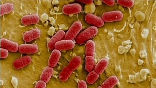 E. coli O157: H7 was detected in ground beef that originated from the XL Foods plant in Brooks, Alta., and has been linked to 18 cases of the illness across the country.