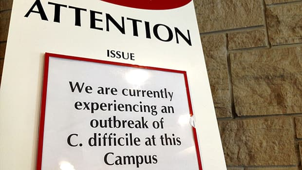 A second Hamilton hospital has declared an outbreak of C. difficile.