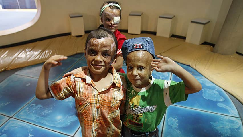 Hussein (R), Ali (L) and Samira, Iraqi children were injured during the Iraq war and have undergone multiple reconstructive surgeries.