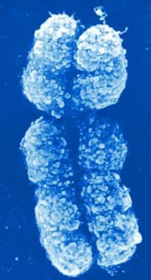 y chromosome  chromosome x