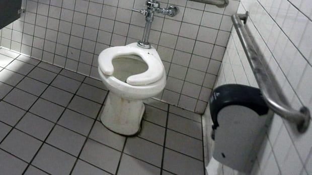 Amazing Toilet Diseases Camellatalisay Diy Chair Ideas Camellatalisaycom