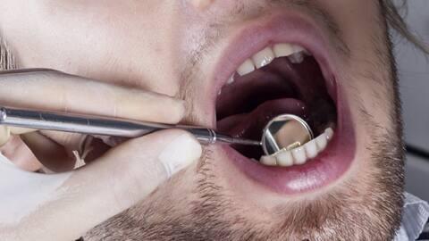 bi-dentist-mouth-istock.jpg