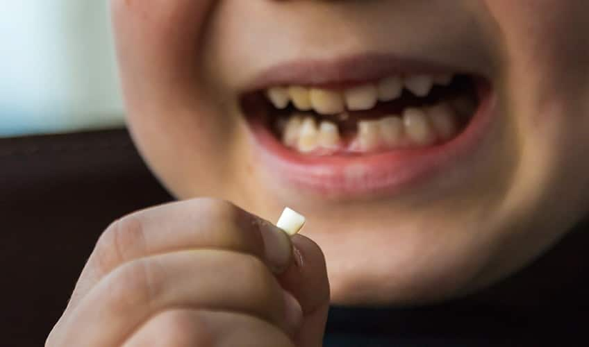 Little boy holding his baby tooth