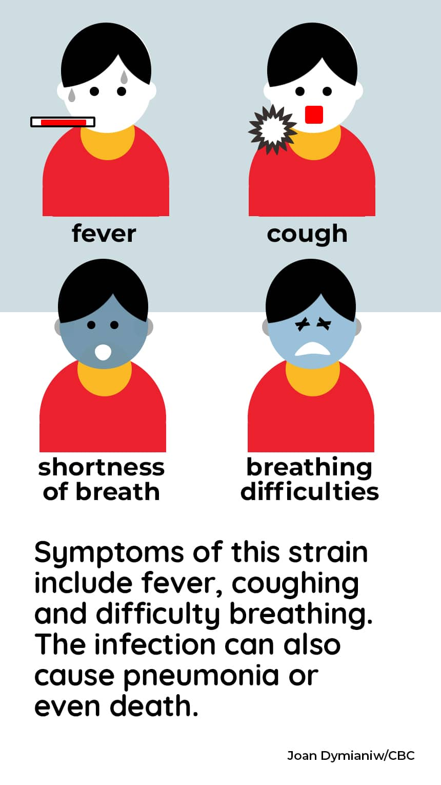 TEXT: Symptoms of this strain include fever, coughing and difficulty breathing. The infection can also cause pneumonia or even death. CREDIT: Joan Dymianiw/CBC