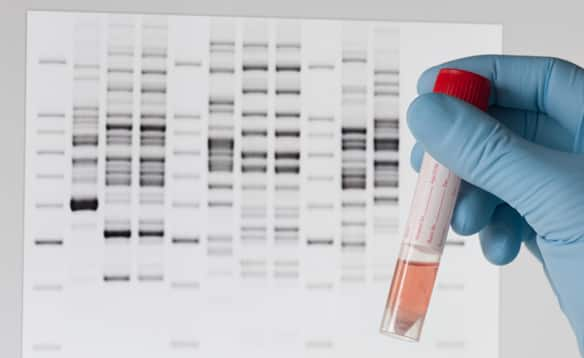 Genetic testing would you take a home dna test point for Where to go for dna testing