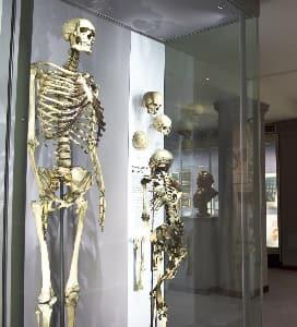 Charles Byrne skeleton.jpg