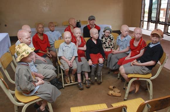 albinos-tanzania-school.jpg