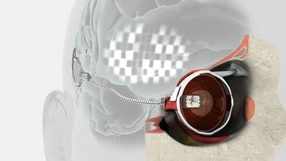 bionic-eye-feature-1.jpg
