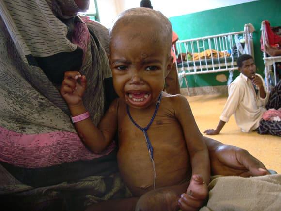malnutrition-pact-second.jpg
