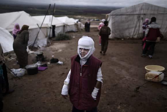syria-aid-burn-victim.jpg